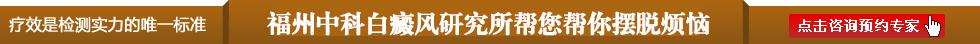 福州中科白癜风研究所患者康复图